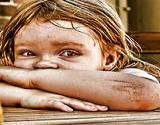 photo of a little girl sitting at a table with scrapes and dirty wounds in need of a parasite cleanse