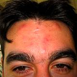 a photo of acne on a guys forhead sign of Vitamin A deficiency