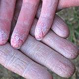 a photo of dry skin on hands a sign of Vitamin A deficiency